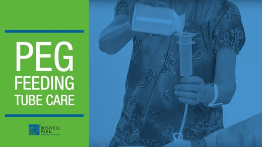 PEG Feeding Tube Care Instructions | Roswell Park Patient Education